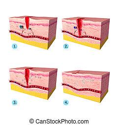 Tissue repair on human skin - 3d rendered illustration of ...