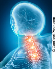 a painful cervical spine
