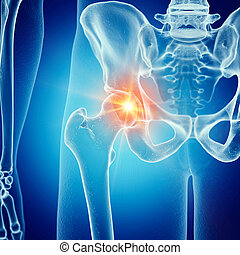 a painful hip joint