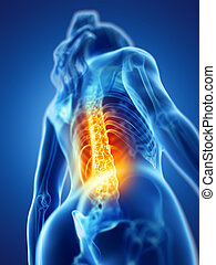 a woman having a painful back