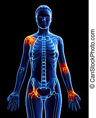 a woman with painful joints