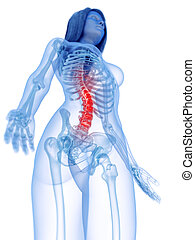 a woman with painful spine
