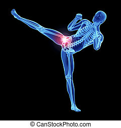 an athletes painful hip joint