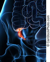 an inflamed appendix - 3d rendered medically accurate ...