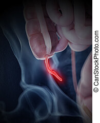 inflamed appendix - 3d rendered, medically accurate ...