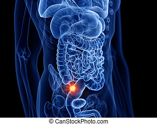 appendix cancer - 3d rendered medically accurate ...