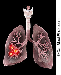 human lung and bronchi