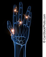 arthritis - 3d rendered x-ray illustration of a hand with...