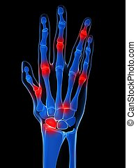 arthritis - 3d rendered x-ray illustration of a skeletal...