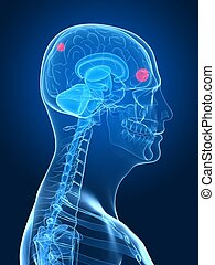 cerebral tumor - 3d rendered x-ray illustration of human ...