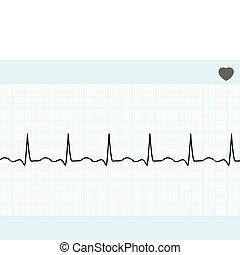 8, ecg., eps, elektrokardiogram, normalny