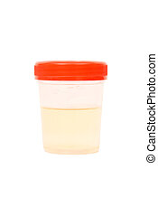 A bottle with urine sample against a white background