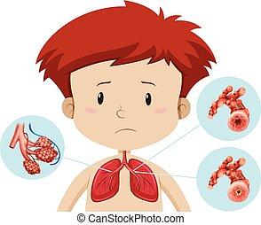 A boy with bronchitis