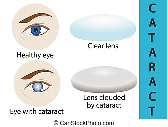 A cataract is an clouding crystalline lens inside the eye. -...