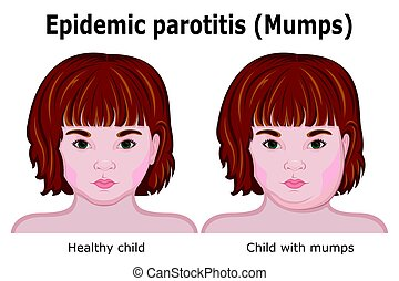 A child with symptoms of mumps - Little red-haired girl with...