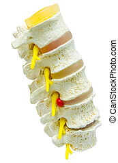 A close-up of a lumbar part of a spine preparation over white ba