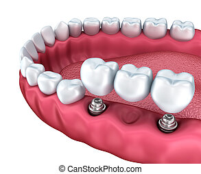 A close-up view of lower teeth and dental implants isolated...