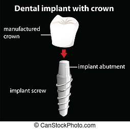A dental implant with crown - Illustration of a dental...