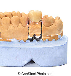 dental mould - a dental mould with a prosthesis on a white...
