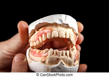 A denture on a gypsum base in the hand of a dentist.