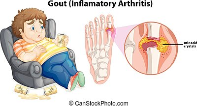 A Fat Man Gout on Foot