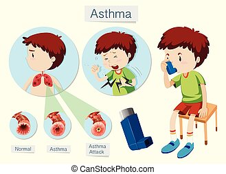 A Human Anatomy and Health Asthma