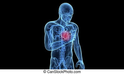 Animation showing a man having a heart attack