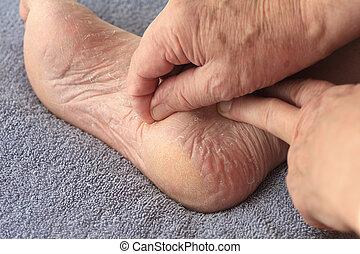 A man peeling dry skin from foot