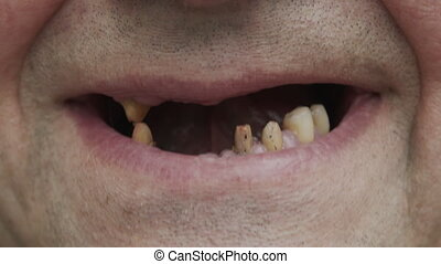A man shows his rotten teeth. Periodontal disease. Sawn ...