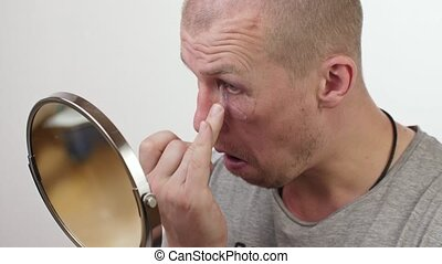 A man smears an ointment on a black eye