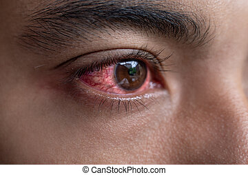 a man with red irritated eyes after work accident