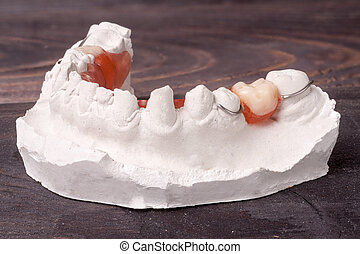 plaster cast of teeth with removable partial denture on a dark wooden background