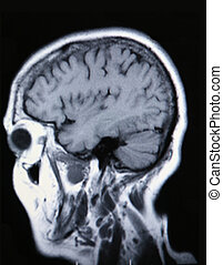 A real MRI/ MRA (Magnetic Resonance Angiogram) of the brain...