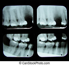 a series of 4 dental x-rays showing a missing tooth, root canal, and fillings in molars and bicuspids
