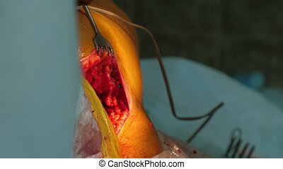 A splitting red hole on a person`s leg and two surgeons...