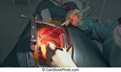 A surgeon performs coronary artery bypass grafting open heart surgery.