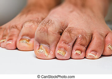 A toenail fungus at the peak of the infection.
