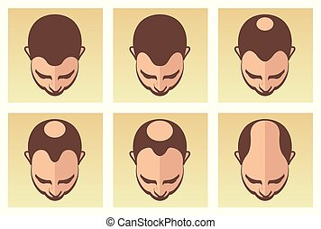 stages of male hair loss