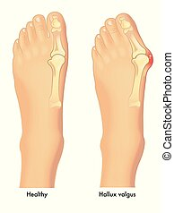 A vector medical illustration of a healthy foot and a foot with a bunion or a hallux valgus on the joint of the big toe.