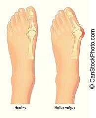 hallux valgus - A vector medical illustration of a healthy ...