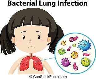 A Vector of Bacterial Lung Infection