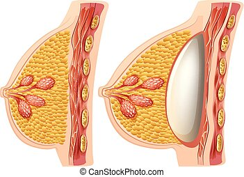 A Vector of Female Implants