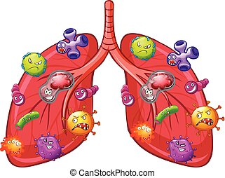 A Vector of Lung Bacteria