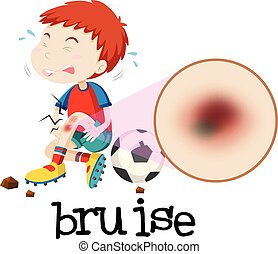 A Young Boy Habing Bruise illustration
