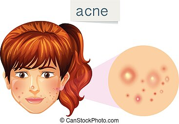 A Young Lady Acne on Face illustration