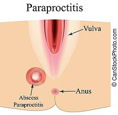 abbildung, hintergrund., freigestellt, perineum., paraproctitis., abszess, infographics., entzündung, vektor