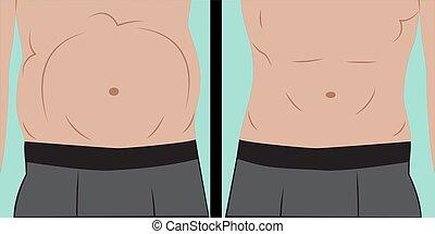 Abdominal bloating vector illustration