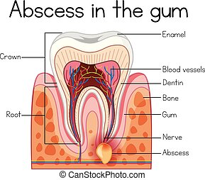 Abscess in the Gum Diagram illustration