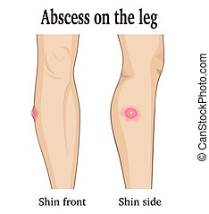 Abscess on the leg - Image abscess on the leg from two...