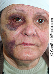Abused old poor woman